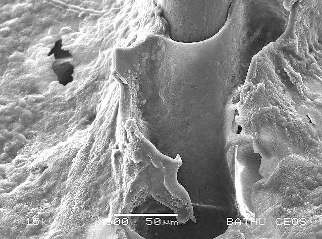 Перхоть на коже: вид под микроскопом