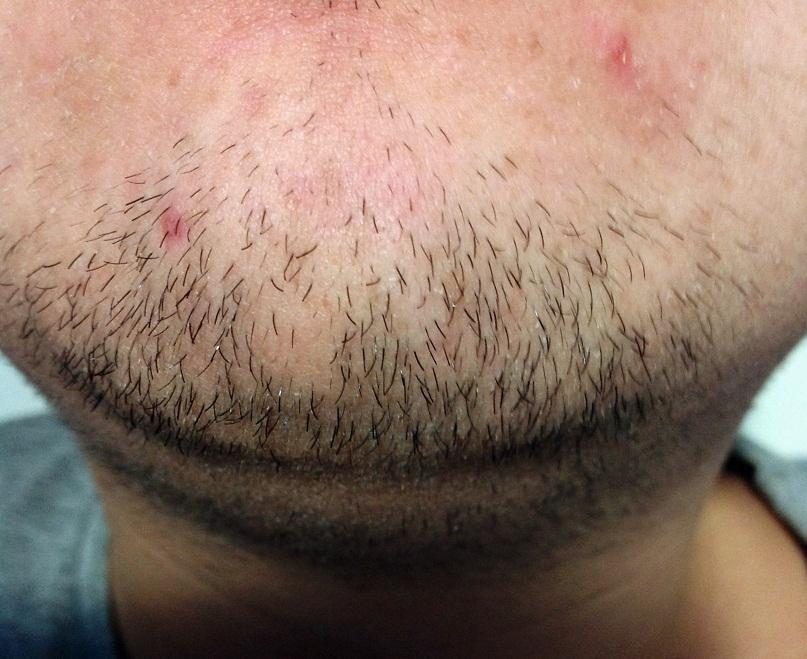 Белые прыщи на бороде у мужчин