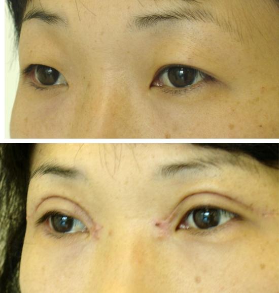 До и после блефаропластик азиатских глаз