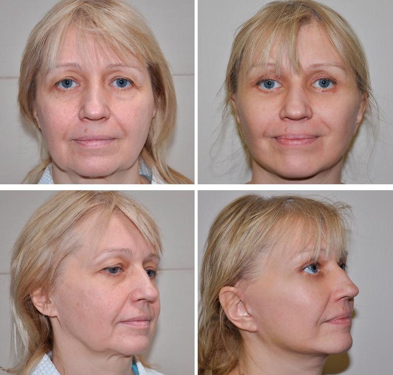 Фото звезд до и после увеличения губ гидра мифическое
