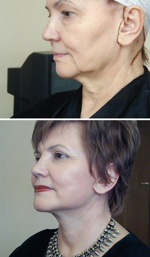 платизмопластика фото до и после отзывы химическим физическим