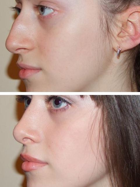 Жизнь после пластики носа