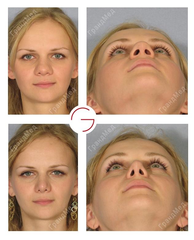 пластика носа картошкой до и после фото самом