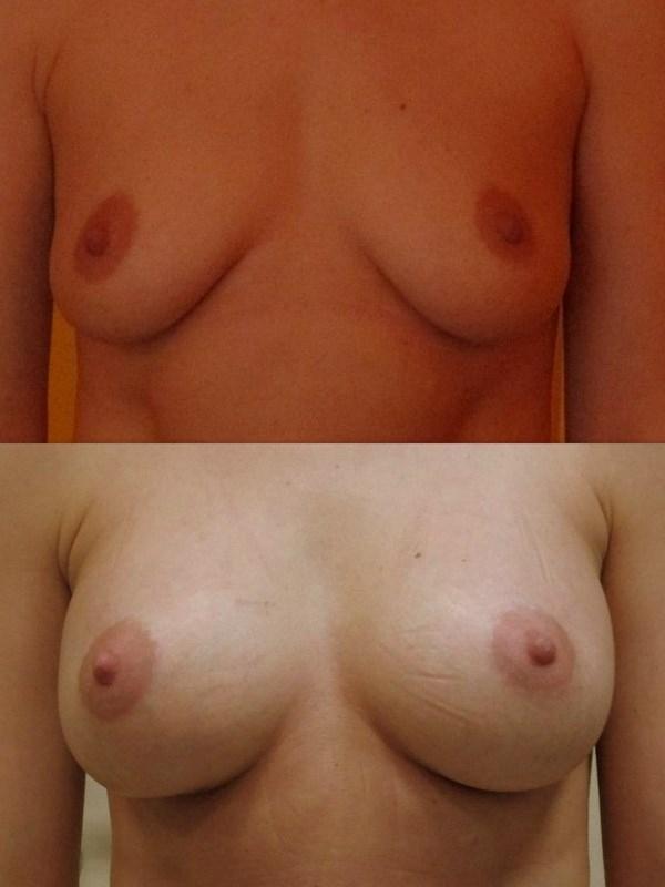 увеличение груди отзывы новокузнецк