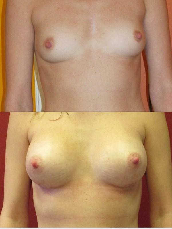 увеличение груди цены фото