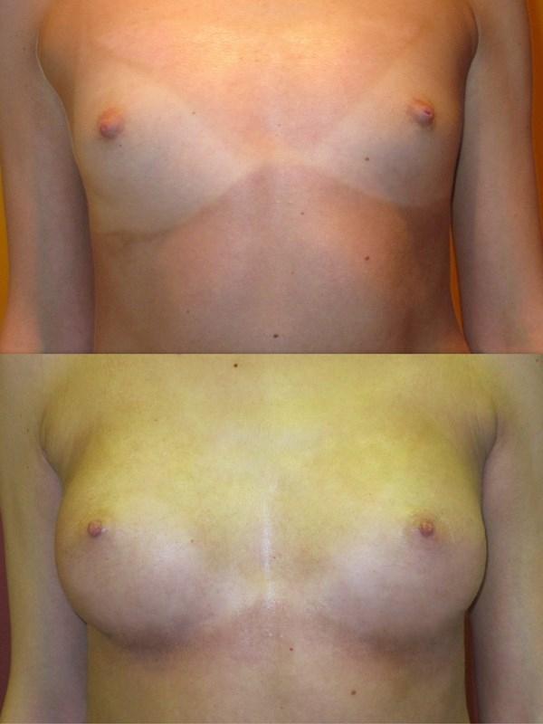 Что из продуктов увеличивает грудь