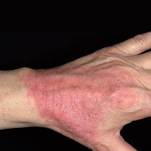 Атопический дерматит гомеопатией